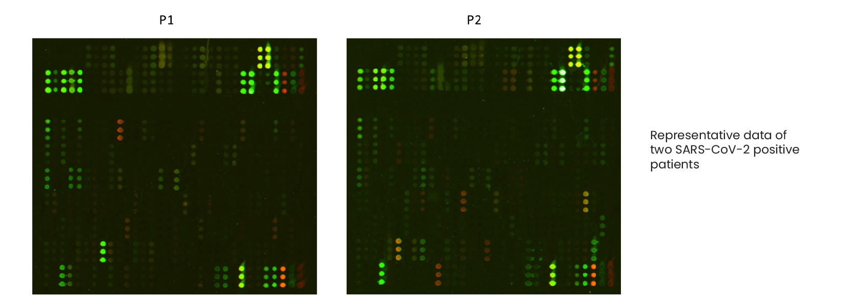 Example-Patient-Data-for-CDI-Labs-SARS-CoV-2-COVID-19-Microarray-Peptides-Protein